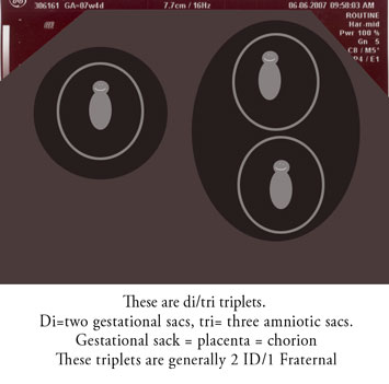 Types of twins and triplets (5/6)