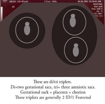 di/tri triplets
