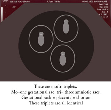 Types of twins and triplets (6/6)