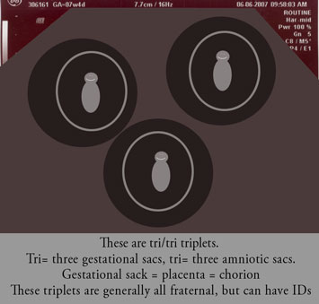 tri/tri triplets