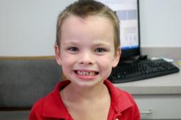 Linus has cleen teeth!